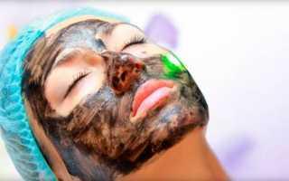 Чем полезна карбоновая маска для лица