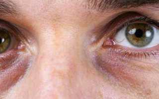 Причины появления синяков под глазами у женщин, методы устранения