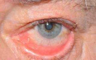 Как лечить излишнюю слезоточивость глаз и что нужно знать об этом