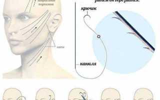 Как сохранить молодость кожи лица с золотыми нитями для подтяжки