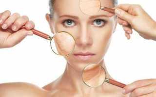 8 поросуживающих масок для лица в домашних условиях