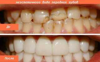 Виниры на зубы: фото до и после