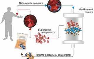 Четыре заблуждения о плазмаферезе