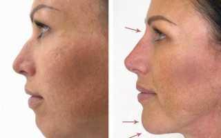 Проведение биоревитализации губ гиалуроновой кислотой