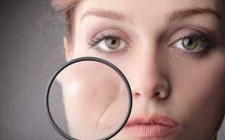 Что делать если уголки рта опущенны и как исправить эстетический дефект