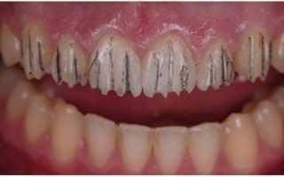 Implant smiles — съемные виниры отзывы