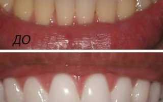 Отбеливание зубов: виды и цены