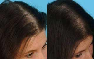 Витамины «доппельгерц» для волос и ногтей: описание состава, отзывы покупателей