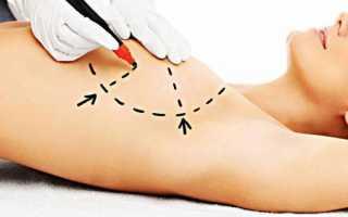 Асимметрия молочных желез при мастопатии