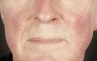 Крем от розацеа на лице