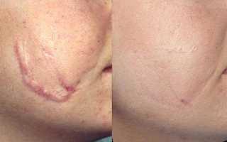 Удаление рубцов на лице методом лазерной шлифовки