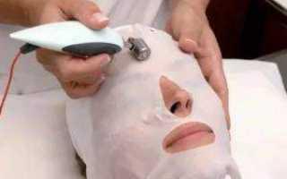 Назначение ионофореза в косметологии
