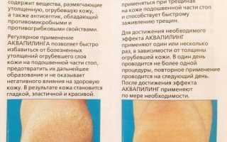 Аквапилинг крем для ног. инструкция по применению, фото до и после, цена, отзывы